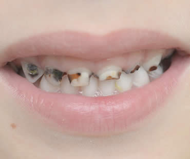 Cavities Not Just for Kids
